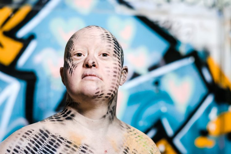 Zora Schemm, eine Frau mit Down-Syndrom steht vor einem gelb-blauen Graffiti. Sie hat keine Haare und ist schulterfrei bekleideti. Sie ist mit schwarzen Mustern am Körper und Kopf bemalt.